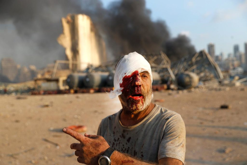 lebanon dead 1024x683 - Images by News